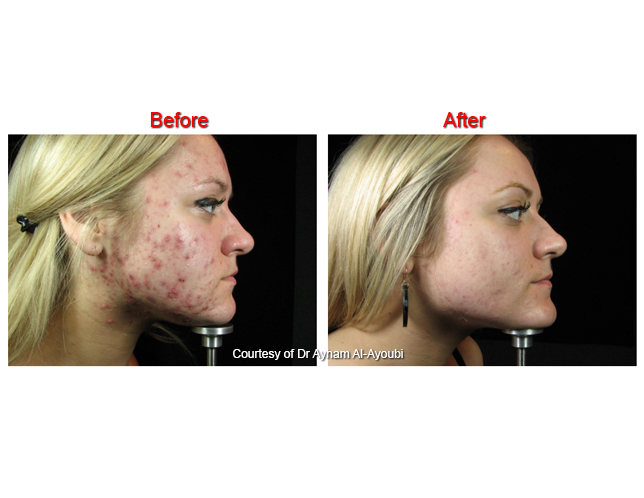 Lustrepro Lustrepro Acne Treatment Clinic Harley Steet