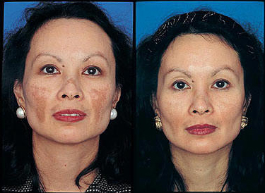 Before And After Photos For Obagi Harley Street Clinic