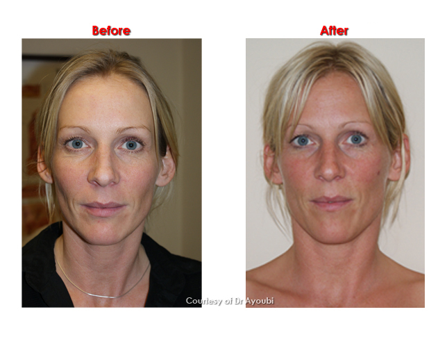 Sculptra Treatment Before And After Photos Harley
