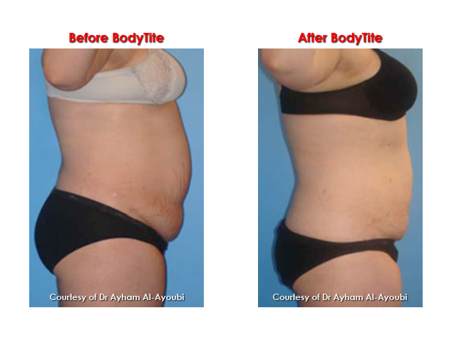 Boytite Liposuction by Dr Ayham Al-Ayoubi