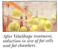 VelaShape by Dr Ayoubi