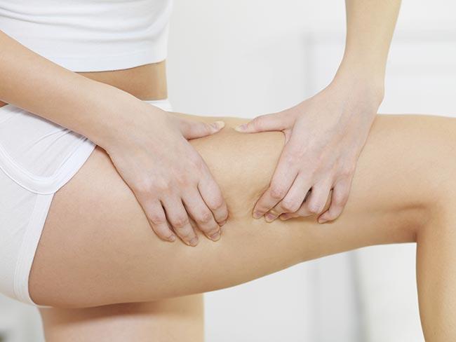 cellulite Cellulaze
