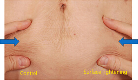 Skin Retraction and Tightening Split Abdomen using Smartlipo