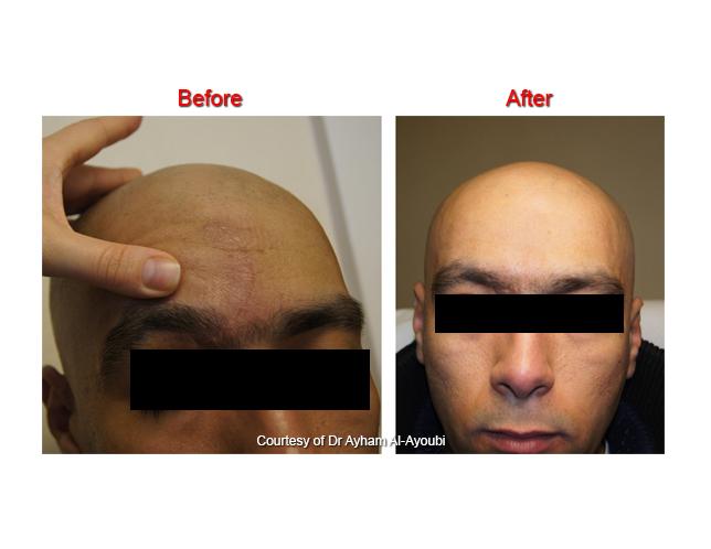 Laser Scar Treatment C...