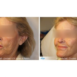 Silhouette Soft Face Treatment in London (Non-Surgical Face Lift)
