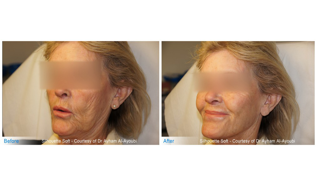Silhouette Soft Face Treatment in London (Non-Surgical Face