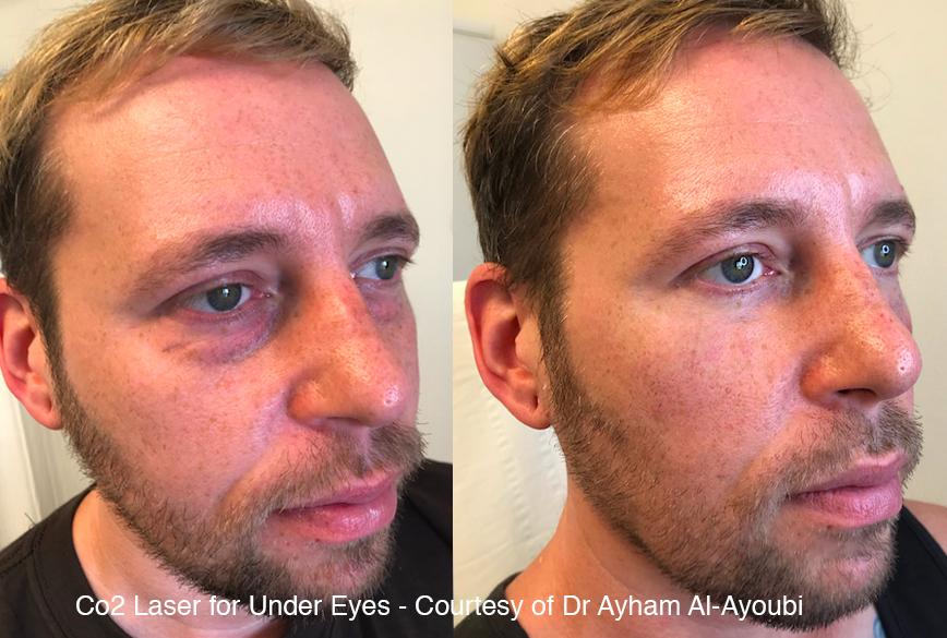CO2 Laser Skin Resurfacing London, Before & After Pics (UK's