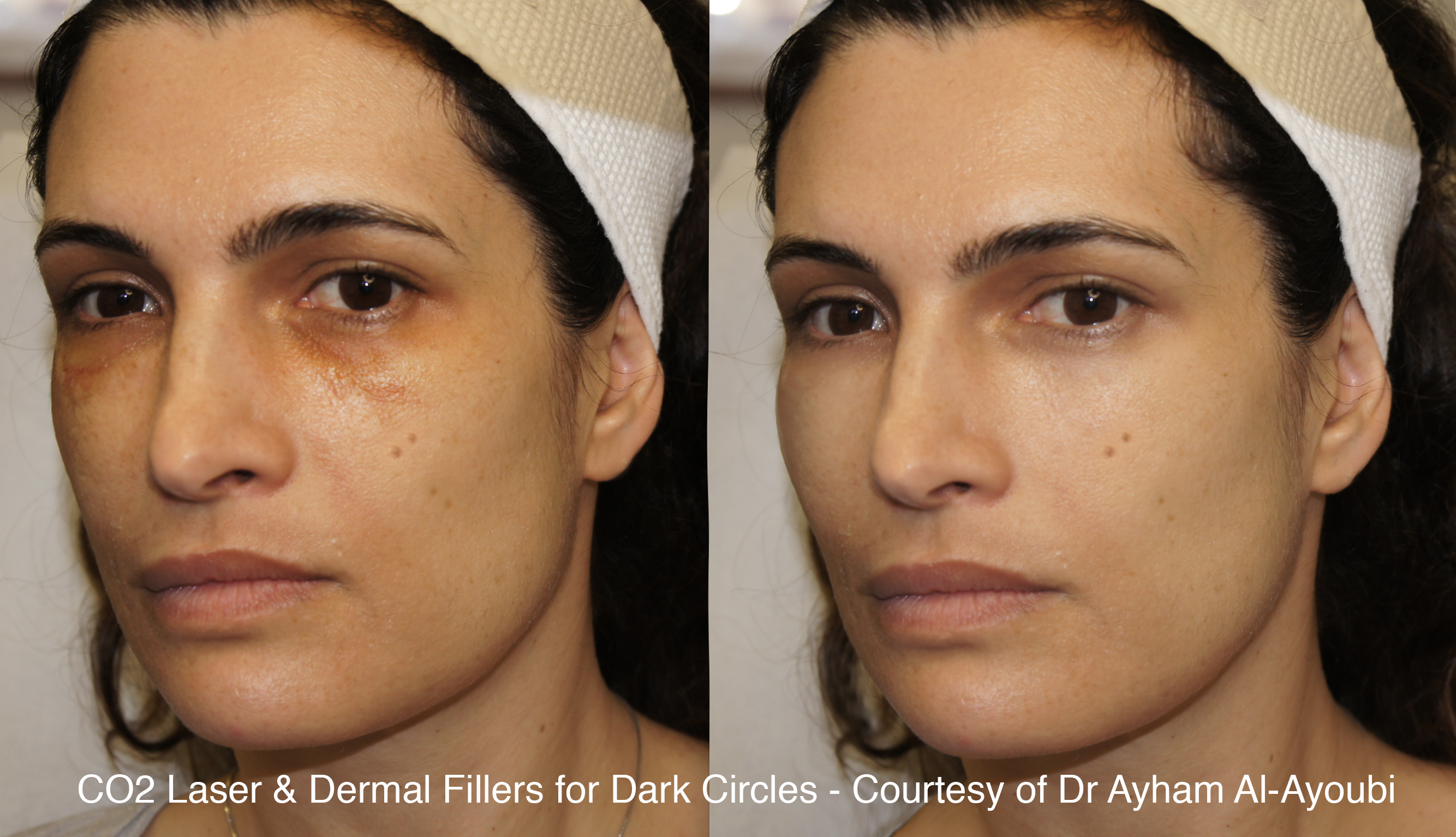 CO2 Laser Skin Resurfacing London, Before & After Pics (UK's Best